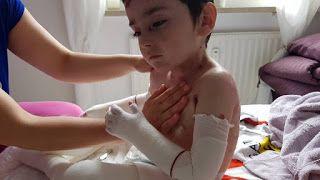 EPİDERMOLYSİS BULLOSA: epidermolysis bullosa