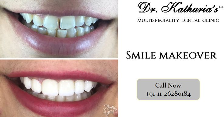 Smile Makeover with #ZoomWhitening and #PorcelainVeneers at Dr. Kathuria's Multispeciality Dental Clinic #SmileMakeover
