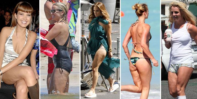 Imperfections Of The Rich And Famous! 20 Celebrities With Cellulite