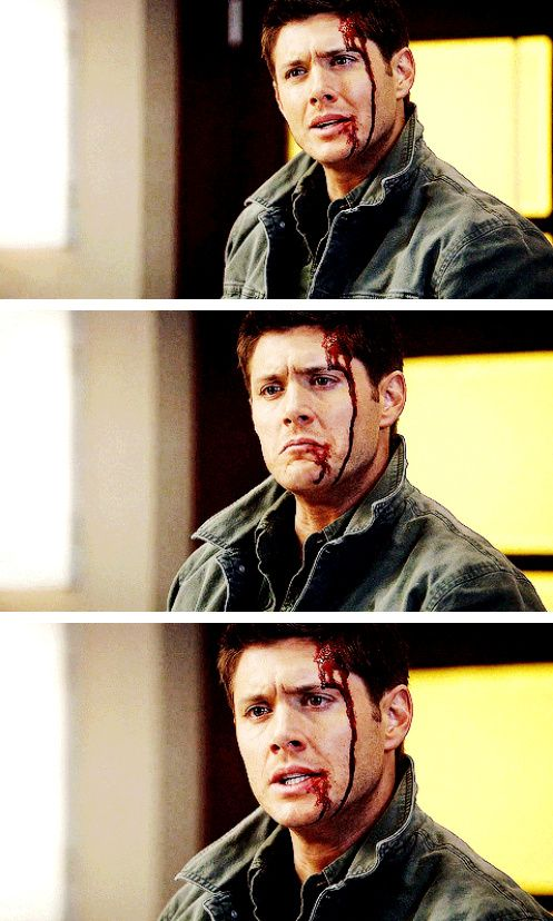 [gifset] 5x20 The Devil You Know #SPN #Dean How can anyone be this attractive with blood on his face?