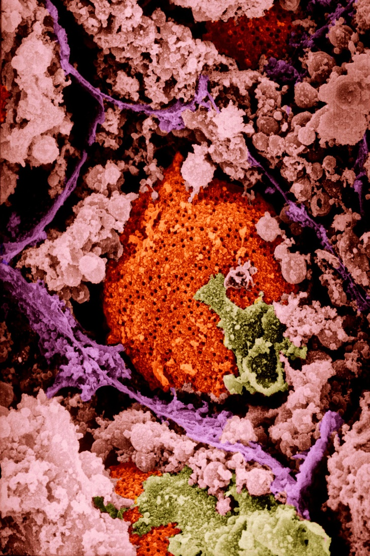 A freeze fracture scanning electron micrograph of a single cell.  The cell nucleus is orange.  The small black holes are nuclear pores.  The cell membranes are purple, the endoplasmic reticulum is pink, and the golgi apparatus is green.    Image credit; Lennart Nilsson