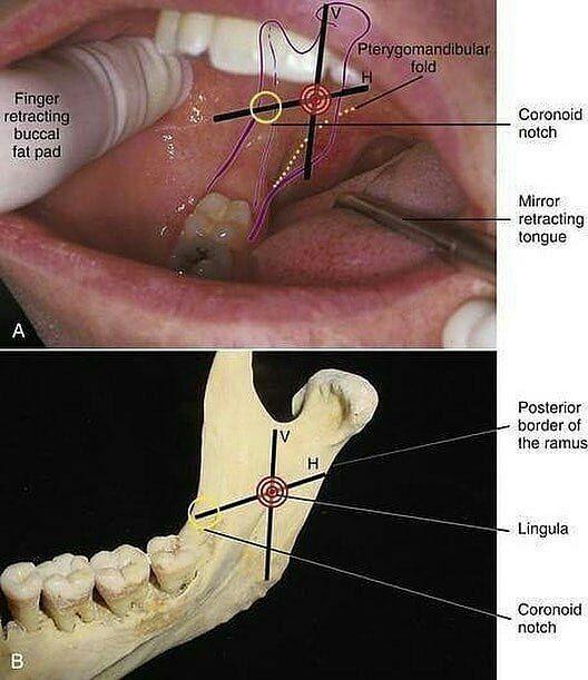 Dental Anatomy For Anesthesia! _______________________________ #alldentfor#dentalstudent #teeth #dental #odontologia #dentistry #braces #dentalschool #dentalassistant #dentalhygienist #dentalhygieneschool #teethwhitening #cosmeticdentistry #cosmeticsurgery #toothfairy #implants #dentures #rootcanal #odonto #smile #whiteteeth #cavity #cavityfreeOd. Erick Gutierrez - #regrann  #odontology #odontologia #dentist #dentistry #dentistrymyworld #dentista #odontologo