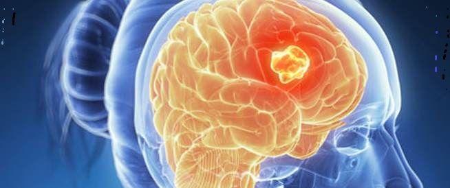 معلومات عامة سرطان المخ اعراض سرطان المخ Candle Holders