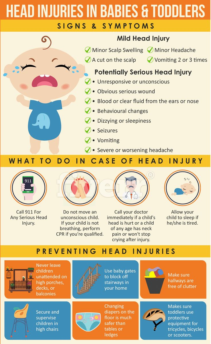 Unfortunately, many toddlers bump their heads more than once. This infographic shows what is a minor / major head injury, prevention tips and when to see the doctor. Visit: http://kidsaversnetwork.com/toddler/baby-bumps-head/