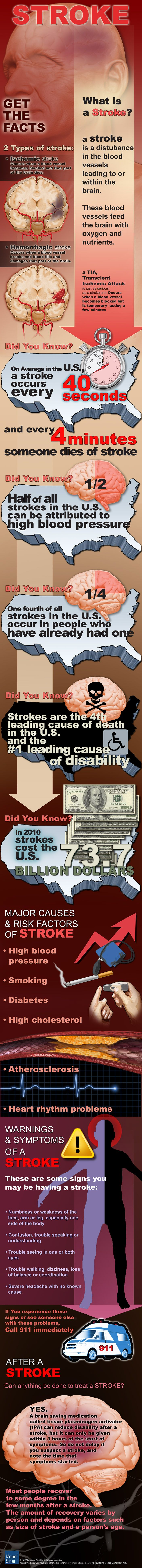 Get the Facts on Stroke #Infographic. Pinned by ottoolkit.com your source for geriatric OT resources.