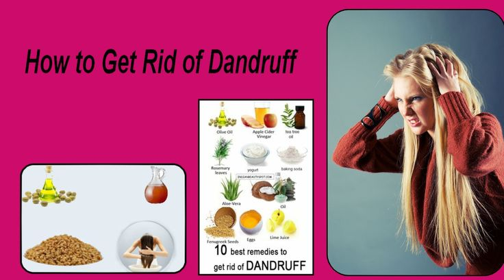 how to get rid of extreme dandruff