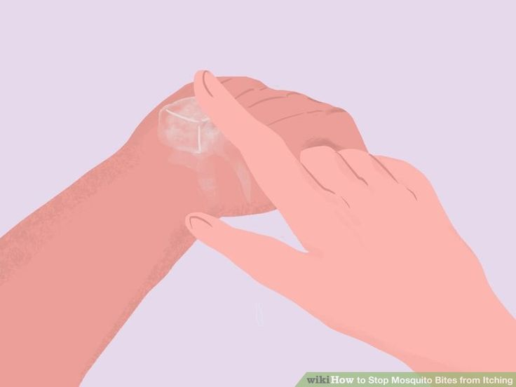 6 Ways to Stop Mosquito Bites from Itching - wikiHow