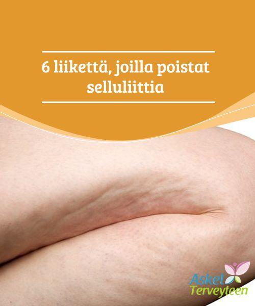 6 liikettä, joilla poistat selluliittia  Selluliitissa rasvasolut muodostavat rykelmiä, joita ympäröi säikeinen sidekudos. Suurentuneet rasvasolut painavat veri- ja lymfasuonia, jolloin verenkierto ja imunestekierto häiriintyvät, ja solujen aineenvaihdunta ja hapensaanti kärsii.