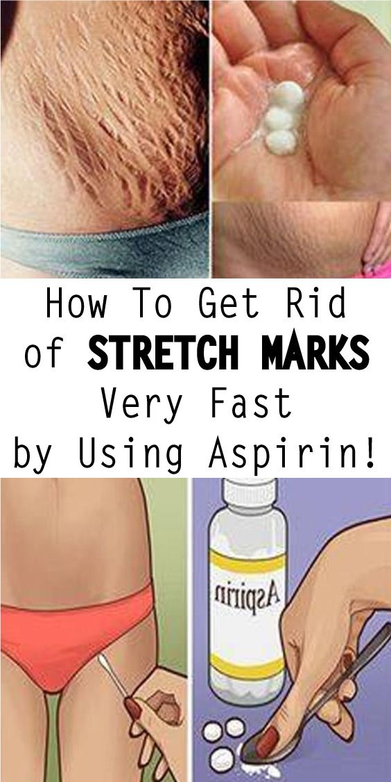 ..sudden gain or loss in weight, rapid growth, heredity, and stress. ..there are several natural ways to reduce the appearance of unsightly stretch marks.