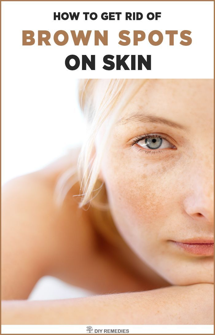 These painless dark patches on the skin are also termed as dark spots, sun spots, age spots and liver spots. They appear most commonly on the face, neck, chest, shoulders, back and hands.    Home Remedies for Dark Spots:  There are many best natural remedies available at home that effectively fades away these dark spots without any side effects.