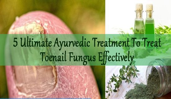 5 Ultimate Ayurvedic Treatment To Treat Toenail Fungus Effectively   If you have