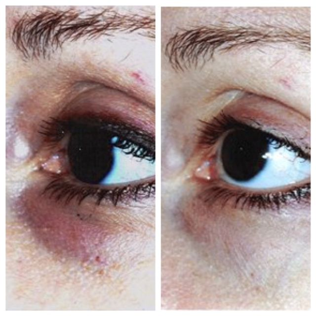 Before and After: Teamine® Eye Complex - by Revision