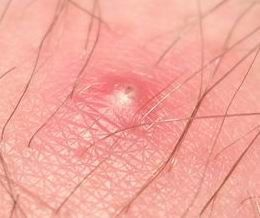 Guys and gals: 6 Steps to applying ingrown hair remedy - Also how to make an Asprin mask (for face or ingrown hair treatment) #IngrownHairRemedies