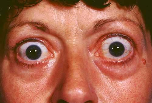 Common #Eyes #Diseases, Their Causes And Possible #Remedies