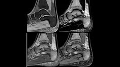 IDEAL imaging application ankle clinical