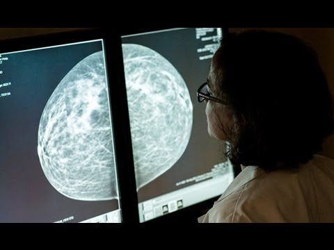 Are you confused about when to start getting screening #mammograms, or how often you should go for them?   Jefferson radiologist and breast imaging specialist Annina N. Wilkes, MD, discusses the importance of screening for breast cancer in this Keep in Touch with Jefferson article and accompanying video: http://blogs.jeffersonhospital.org/atjeff/2013/10/04/mammograms-catching-breast-cancer-early/