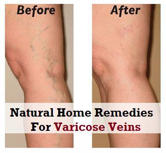 Natural Home Remedies for Varicose Veins