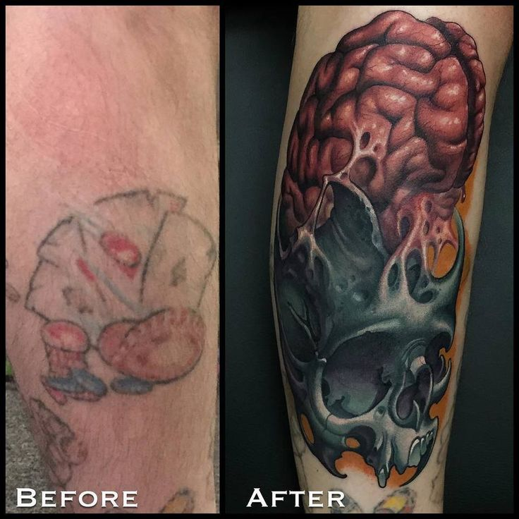 82 best images about tattoo removal to tattoo cover up on for How to cover up tattoos for work