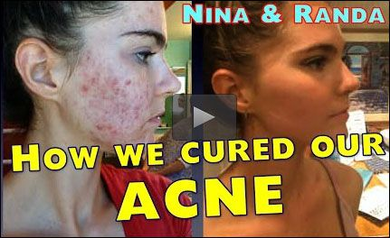 1000 images about nina and randa on pinterest nelson oily skin and