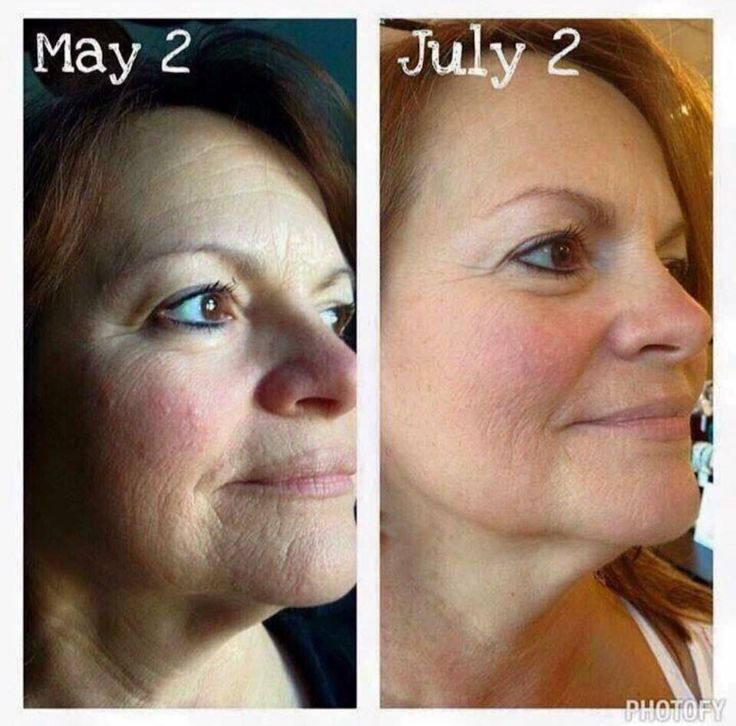 REDEFINE!  Look at her beautiful results this customer received in just two months of using Rodan and Fields REDEFINE Regimen.  This could be you!