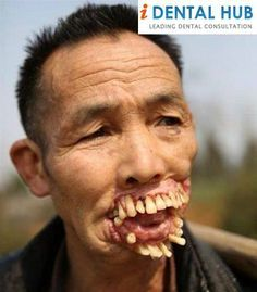 weird teeth - Google Search