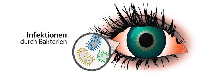 Bakterien im Auge - Hier erfahrt Ihr welche bakteriellen Infektionen es gibt & wie diese behandelt werden können.