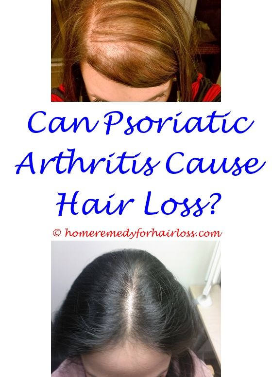 hair loss with thyroid condition - best laser brush for hair loss.women's topical hair loss treatment causes for teenage female hair loss perm hair loss solution 7606362154