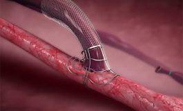 Laminate Medical's VasQ Fistula Supporting Device Gets FDA Investigational Device Exemption