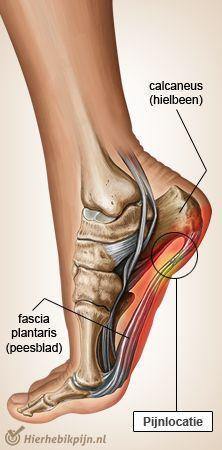voet fasciitis plantaris apaneurosis hielspoor
