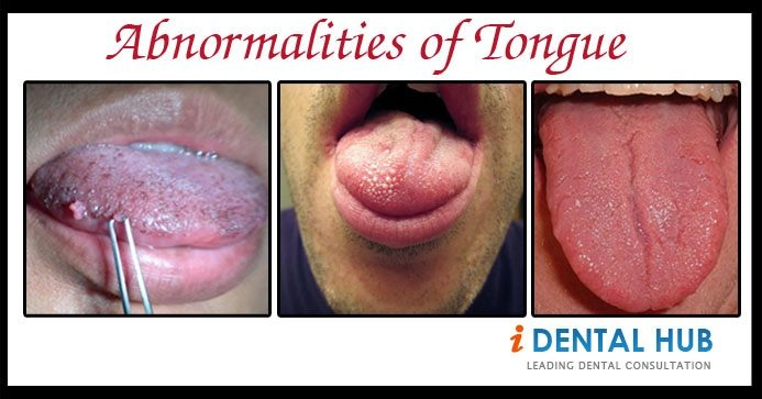 Tongue is an important part of mouth and it can suffer from many abnormalities like tongue tie, Macroglossia, Black Hairy tongue, Median Rhomboid Glossitis, Microglossia, Geographic tongue, Tongue Cancer.