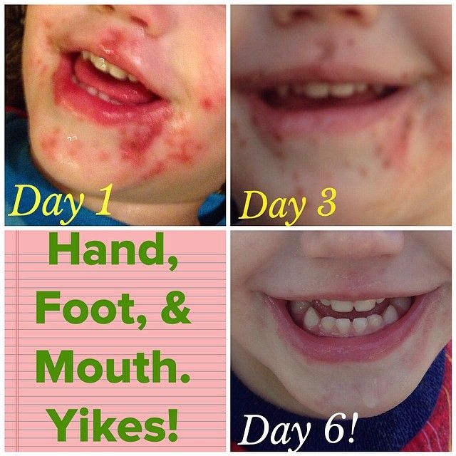 home remedies for hand foot and mouth disease