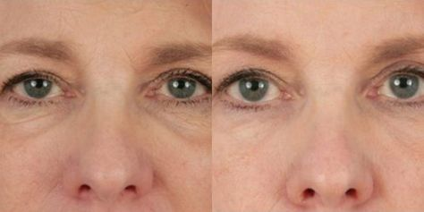 Het wondermiddel voor wallen en donkere kringen onder je ogen is baking soda! Baking soda stimuleert de bloedsomloop en zorgt e...