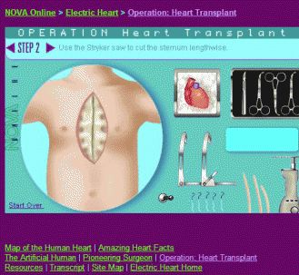 Learn how to do a heart transplant with this PBS heart game