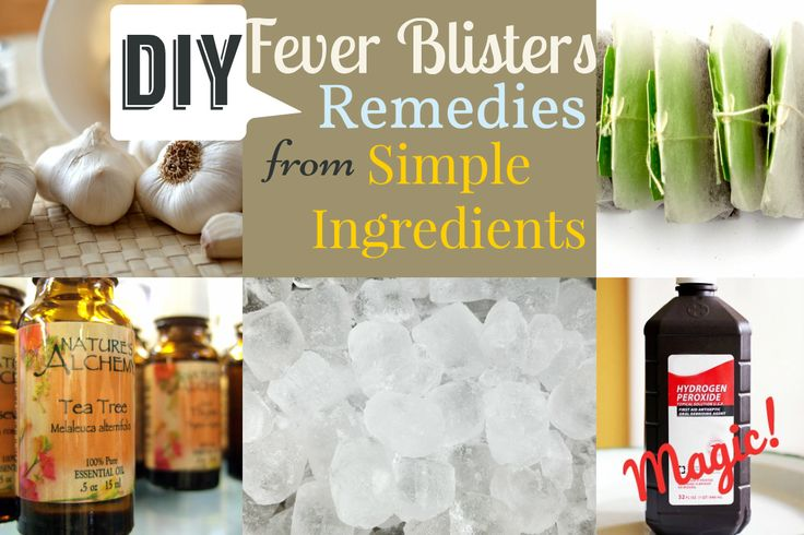 Fever Blisters Remedies from Simple Ingredients