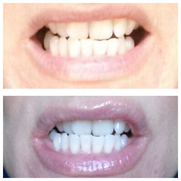 Fluoride whitening tooth paste before and after 1 week!!
