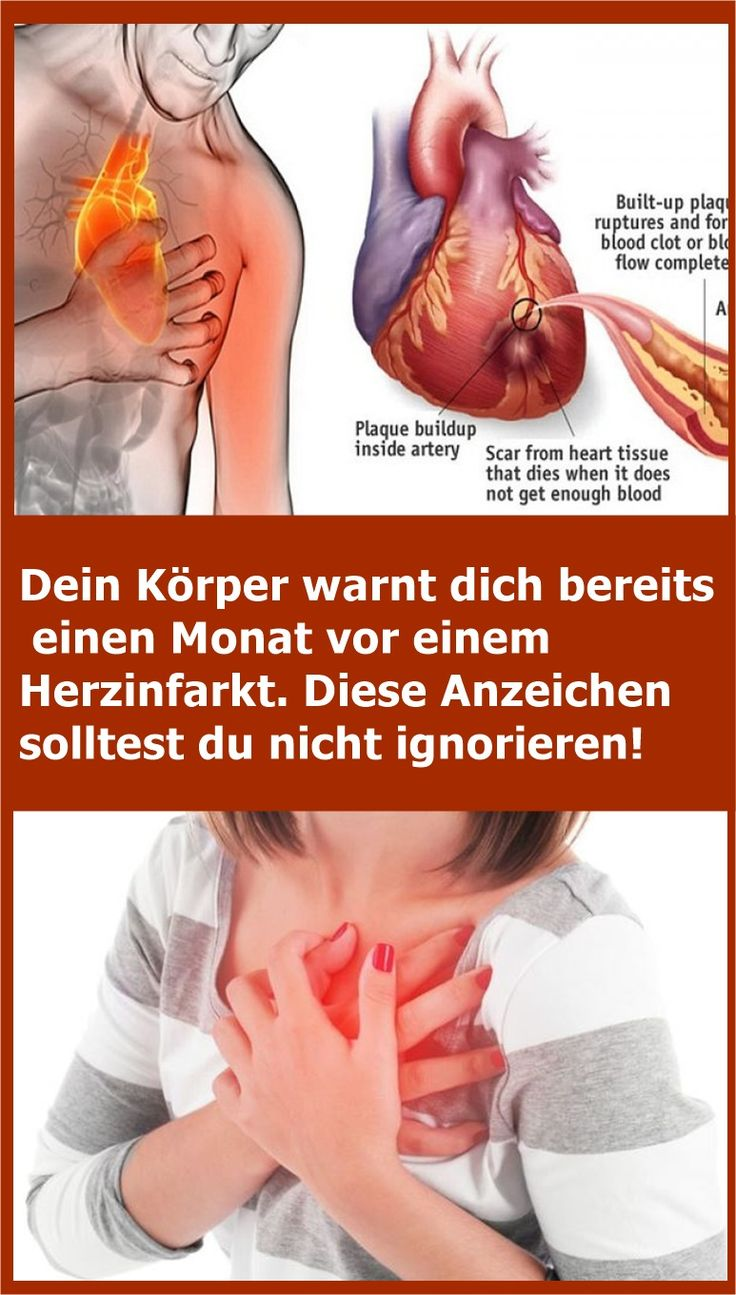 Your body warns you already one month before a heart attack. You should not ignore these signs! | njuskam!
