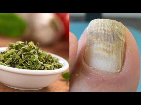 Los medios públicos por el tratamiento del hongo sobre los dedos de las manos