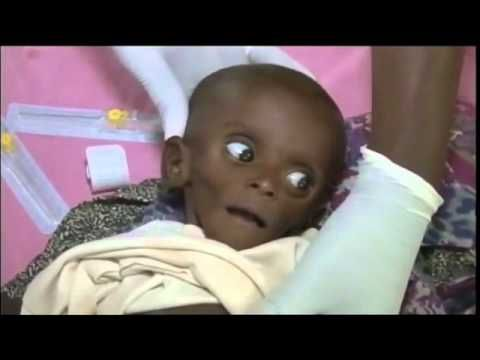 Famine & Drought! Tears of the sun! (Miracle in somalia horn of africa) - YouTube