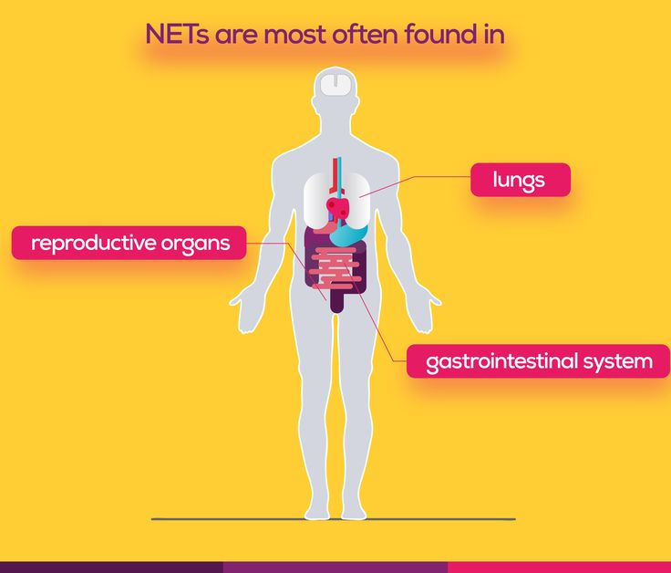 NETs are most often found in,  gastrointestinal system, lungs or reproductive organs