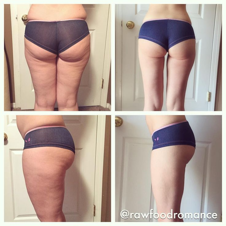 Ketogenic diet weightloss before and after pics. Lose 20 lbs. fast! Lissas Raw Food romance   Same girl. Same shorts. Almost 10 months to the day apart. Before pics were shot November 23, 2014. After pics are today, September 28, 2015. My skin has improved dramatically. Im so impressed! My knees dont make creaky noises and scream in pain when I run or squat anymore. Yes I still have stretch marks. Yes my skin isnt perfect. But know what? I LOVE where I am.