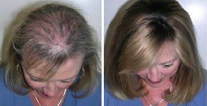 Conoce estos fabulosos trucos para acelerar y hacer crecer tu cabello de forma rápida.
