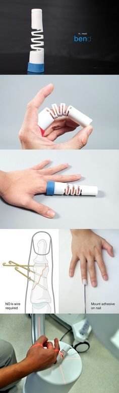 The Bend is a medical finger-splint with a revolutionary design. Finger bone fractures can be painful, however dislocations of bones isn't just about pain, if not treated well, you could lose functionality of that finger for life. Read more at Yanko Design