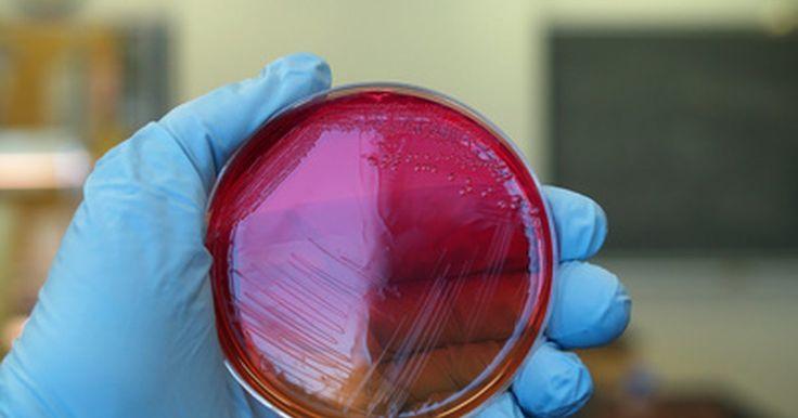 Algunas bacterias que son beneficiosas. La mayoría de las personas asocian las bacterias a enfermedades e infecciones, pero hay muchas que son útiles tanto para el hombre como para el resto de animales. A principios de 1900, un científico ruso descubrió estas bacterias beneficiosas, llamadas probióticas, en los humanos y en otros mamíferos. Este descubrimiento te ayuda a entender la ...
