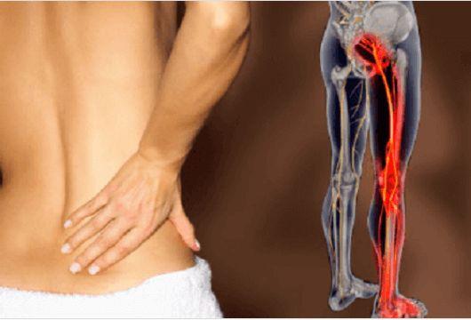 Όταν το ισχιακό νεύρο αναπτύσσει φλεγμονή αρχίζει να εμφανίζεται πόνος στους γλουτούς που φτάνει μέχρι το πίσω μέρος του μηρού και πολλές...