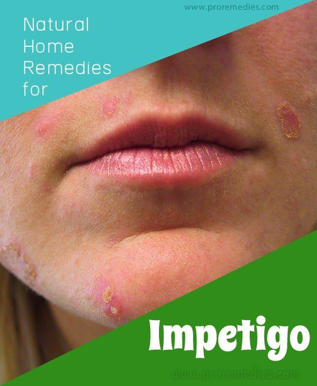 Best Natural Treatment For Impetigo