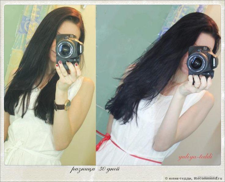 ускорить рост волос (фото до и после)