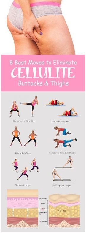 Best Moves to Eliminate Cellulite on Buttocks and Thighs.