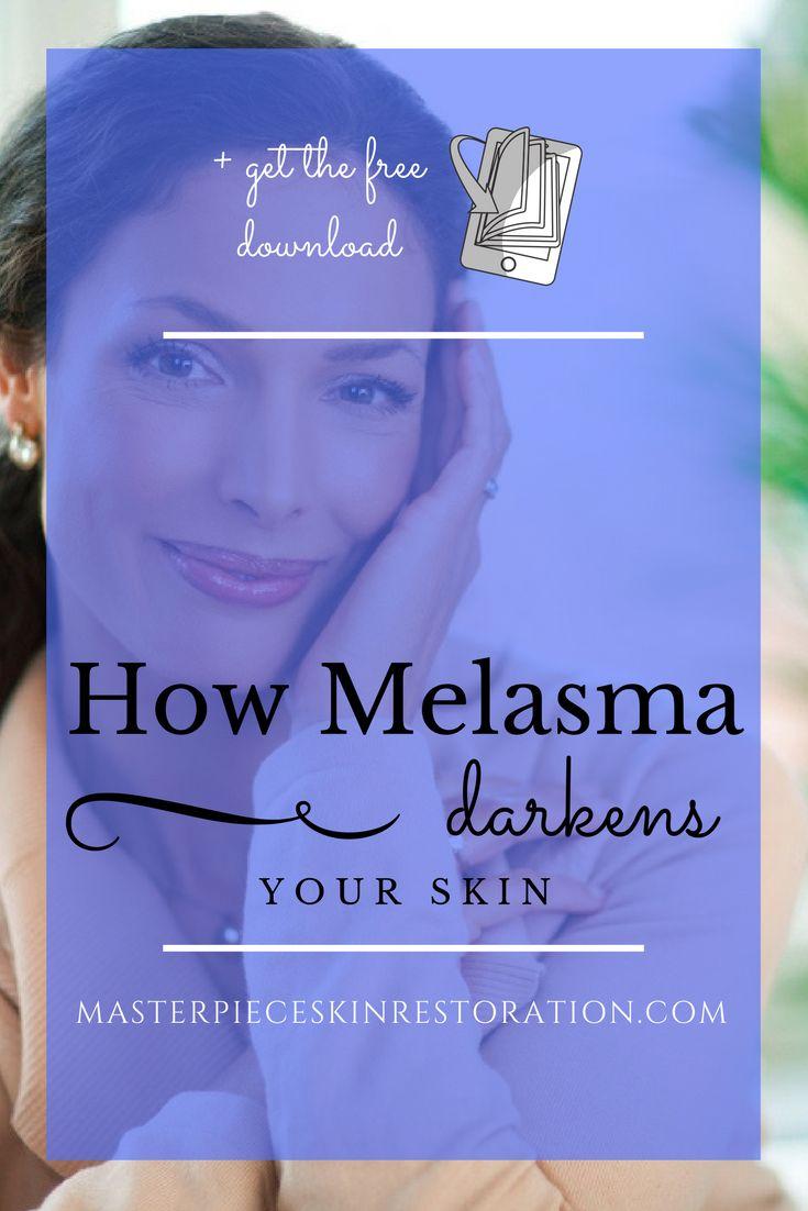 melasma, dark spots, hyperpigmentation, melanin, hormones, symmetrical grey brown patches on face, flat patches, sunlight, heredity, diagnosis, treatment, skincare, skin rejuvenation, medical beauty, medical aesthetics, Masterpiece Skin Restoration