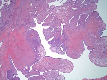 Borderline Phyllodes Tumor: There are leaf like projections with condensation of cellular stroma