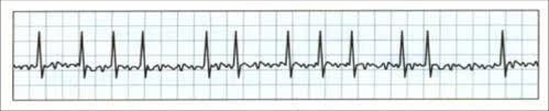 Hartritmestoornissen Wat is het: Een hartritmestoornis is een afwijking in het ritme van de hartslag. Oorzaak: schildklierziekte, een longontsteking, na een zware inspanning, na veel alcohol of veel koffiegebruik. Behandeling:  -medicijnen om het hartritme te controleren of verlagen -cardioversie -ablatie -pacemaker -ICD -operatie om de oorzaak weg te nemen (klep- of bypassoperatie)